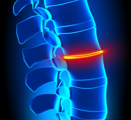 degeneration: Thinning Disc Degeneration - Spine problem Stock Photo