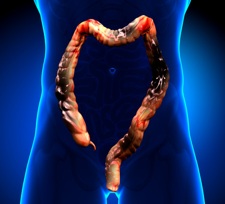 Colon Cancer   Colorectal cancer Stock Photo - 26051976