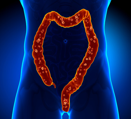 ulcerative colitis: Colon Anatomy - pain
