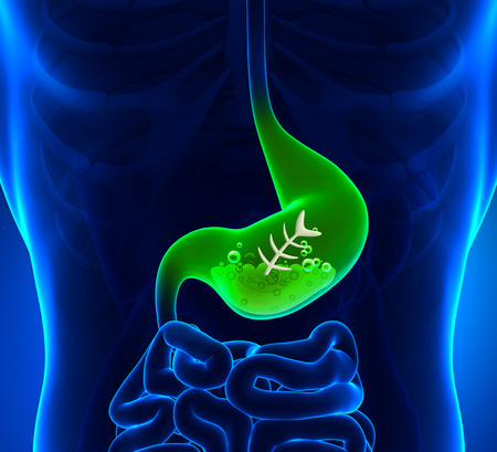 food poisoning: Upset stomach - Stomach Ache Stock Photo