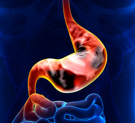 Stomach Cancer Stock Photo - 26050669