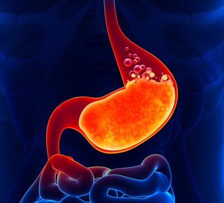 dolor de estomago: Ácido gástrico Foto de archivo