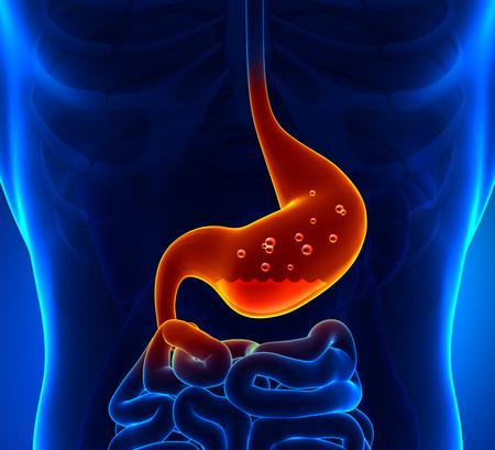 gastritis: Gastric Acid