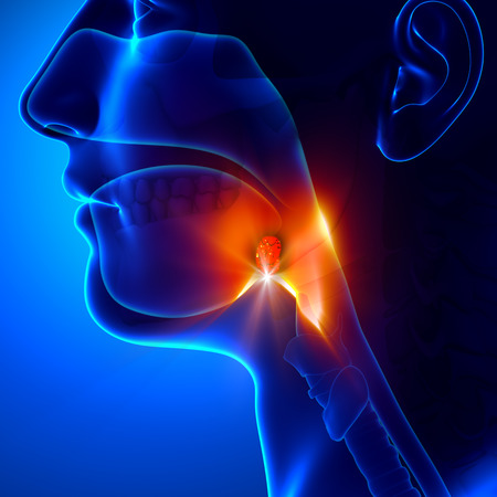 throat: Tonsils - Angina Pectoris Stock Photo