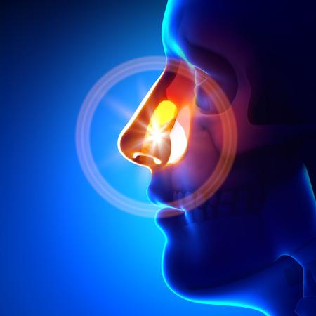 neus: Stuck voorwerp in neus Stockfoto
