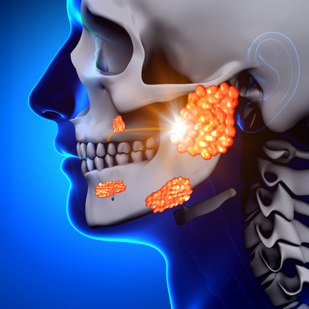 parotid gland: Mumps   Parotid Gland - Sickness Stock Photo