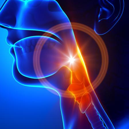 아픈: 목의 통증 - 독감 감기 빨려 목 스톡 사진