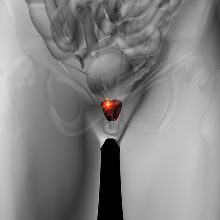 prostate cancer: Prostate - Male anatomy of human organs - x-ray view
