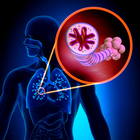 lung bronchus: Asthma - Chronic Inflammatory Disease Stock Photo