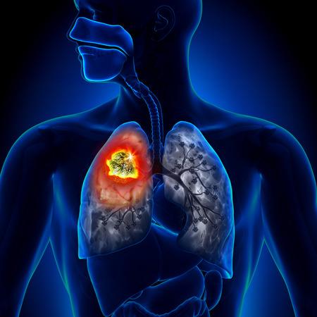 Cáncer de pulmón - detalle Tumor Foto de archivo - 29347945