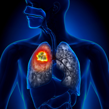 dolor de pecho: Cáncer de pulmón - detalle Tumor