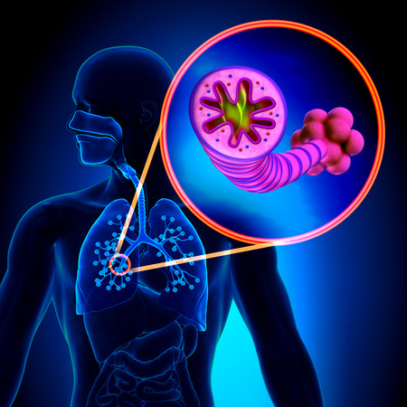 COPD - Chronic Obstructive Pulmonary Disease Stockfoto - 29347960