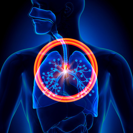 purify: Lungs Foreign Object - inhaled or swallowed Stock Photo