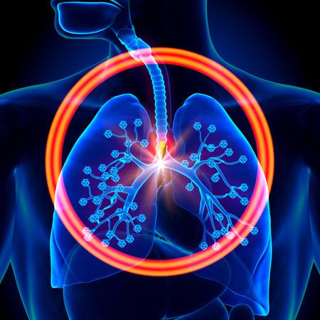 alveolos pulmonares: Pulmones de objetos extraños - se inhala o se ingiere Foto de archivo