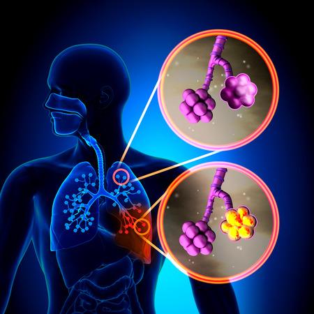 pneumonia: Pneumonia - Normal alveoli vs Pneumonia