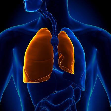 기흉 - 폐 붕괴 스톡 콘텐츠