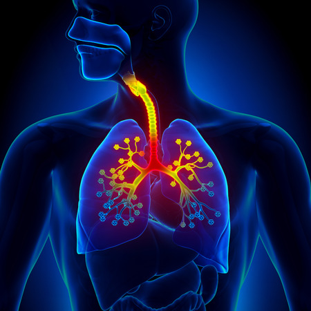 inflammation: Bronchiolitis - Inflammation of the bronchioles Stock Photo