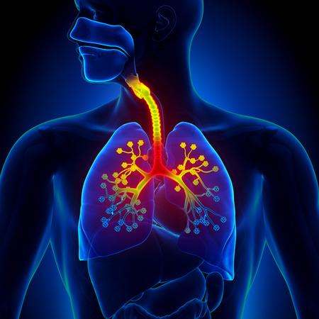 dolor de pecho: Bronquiolitis - inflamación de los bronquiolos