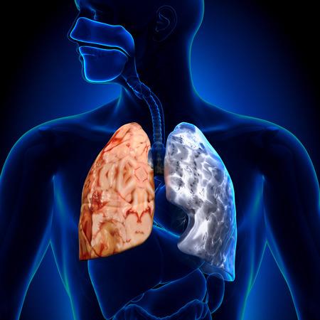 Smoker vs Non-smoker - Lungs Anatomy photo
