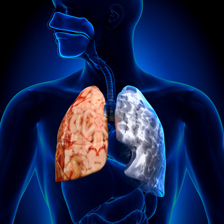 bone cancer: Smoker vs Non-smoker - Lungs Anatomy