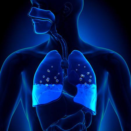Longoedeem - Water in de longen Stockfoto - 29347971