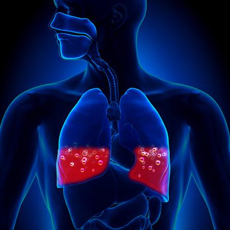 Pulmonary Edema - Blood in Lungs photo