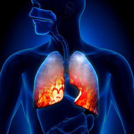 Neumonía - Pulmones inflamatoria Condición Foto de archivo - 29347973