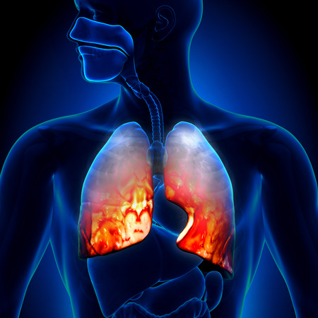 cold virus: Pneumonia - Lungs Inflammatory Condition