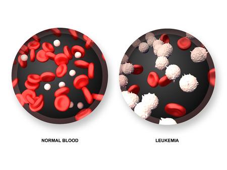 白血病対通常の血 写真素材