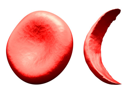 half cut: Normal vs Sickle Red Blood Cell Stock Photo