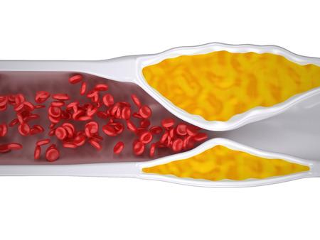 grasas saturadas: Arteria obstruida - Aterosclerosis  Arteriosclerosis - Colesterol placa - vista desde arriba