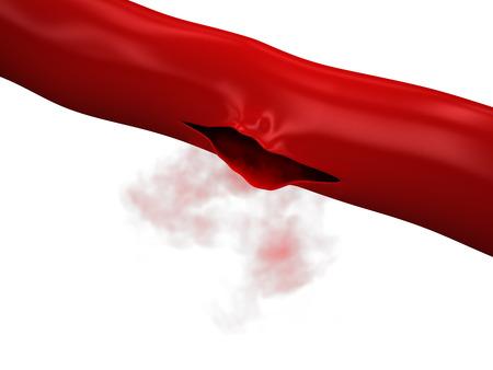 Rottura Vena - Arteria sanguinamento Archivio Fotografico - 32041514