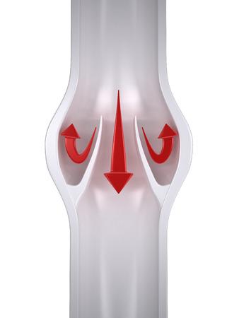 valves: Varicose Vein Anatomy