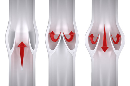 通常の vs - 下肢静脈瘤静脈の解剖学 写真素材