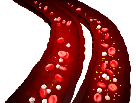 human blood vessel: Blood Stream - Normal vs Diabetes - isolated on white Stock Photo