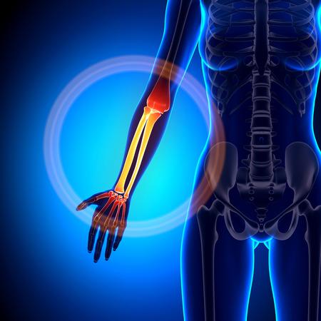 forearm: Female Radius  Ulna - Forearm - Anatomy Bones