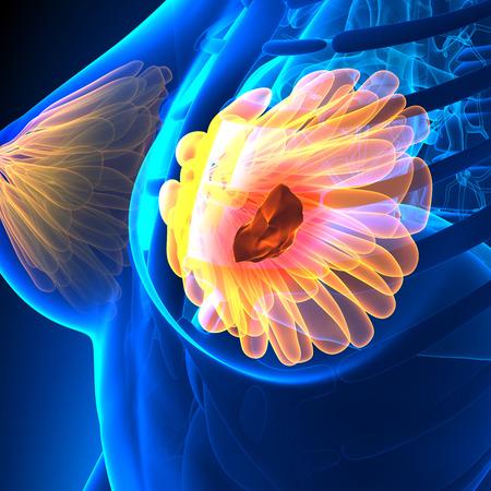 female breast: Breast Cancer - Female Anatomy - tumor highlight