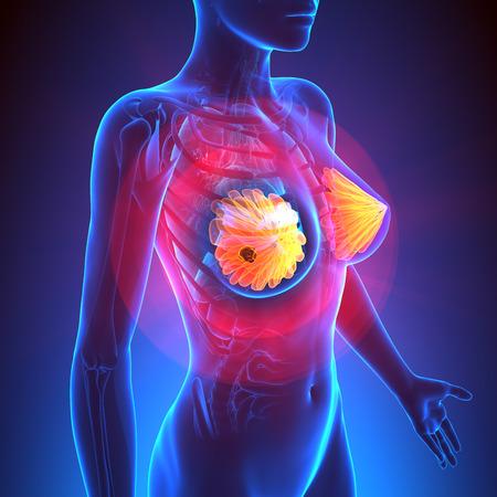 Borstkanker - Vrouwelijke Anatomie - tumor hoogtepunt