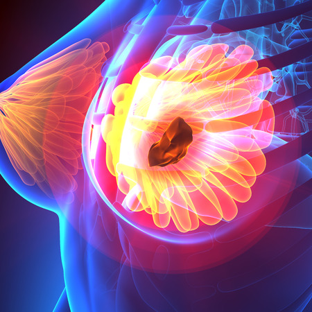 nipple breast: Breast Cancer - Female Anatomy - pain concept