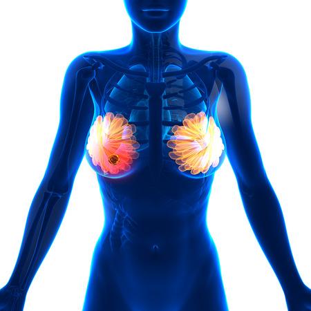 naked female: Breast Cancer - Female Anatomy - isolated on white Stock Photo