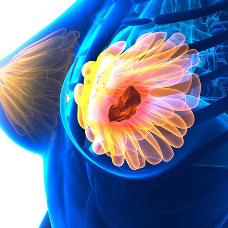 naked female body: Breast Cancer - Female Anatomy - isolated on white Stock Photo