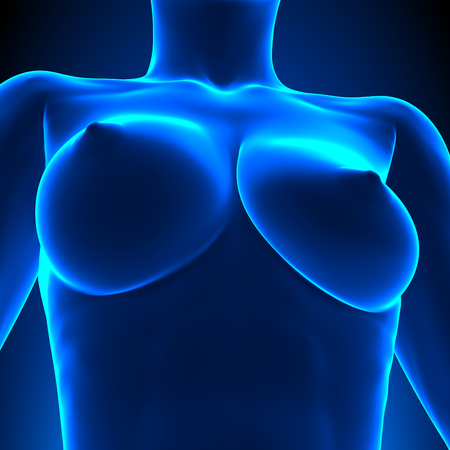 breast nipple: Uneven Breasts - different sizes