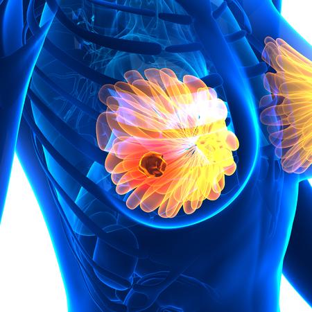 female breast: Breast Cancer - Female Anatomy - isolated on white Stock Photo