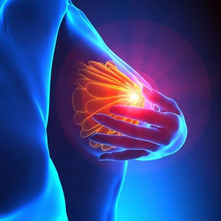 Esame del seno femminile - Concetto di consapevolezza del cancro Archivio Fotografico - 35361728