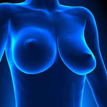 anatomy naked woman: Uneven Breasts - different sizes