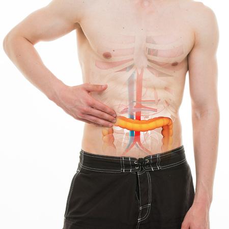 intestino: Dolor Abdominal - Colon Intestino lado derecho del dolor - Anatomía VERDADERO