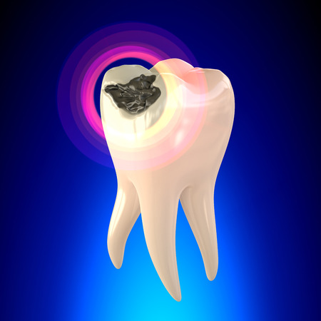 yellow teeth: Tooth Molar with Dental Caries