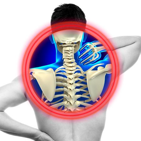 cervicales: Dolor de cuello columna cervical aislado en blanco - concepto de Anatom�a VERDADERO