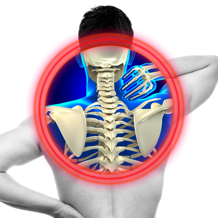 anatomia: Dolor de cuello columna cervical aislado en blanco - concepto de Anatomía VERDADERO