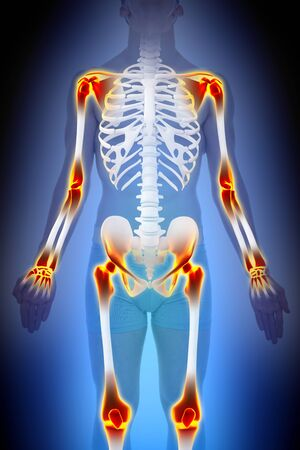 Artritis gewrichtspijn Anatomy Man-concept